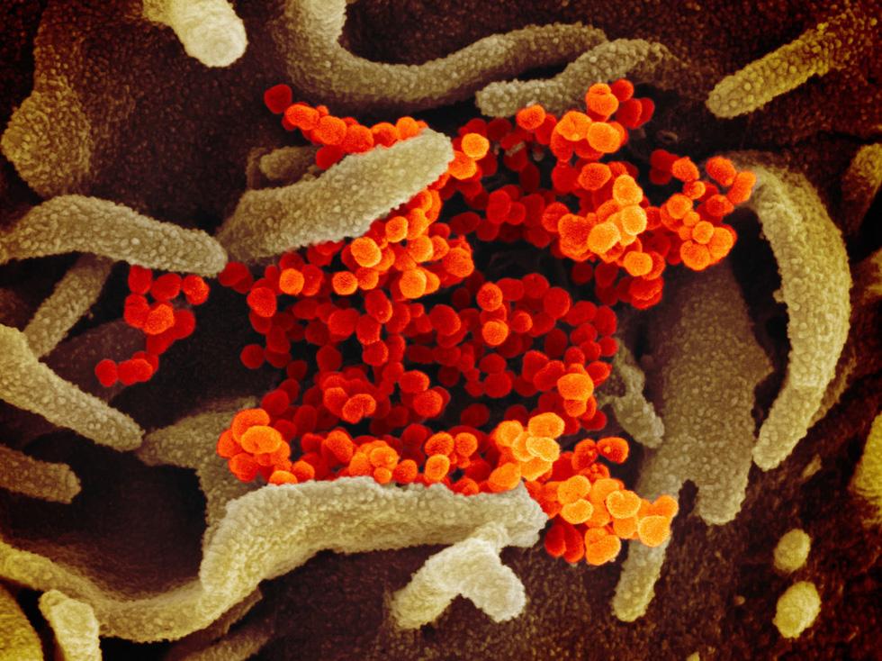 Virus corona chủng mới trông ra sao dưới kính hiển vi? - Ảnh 3.