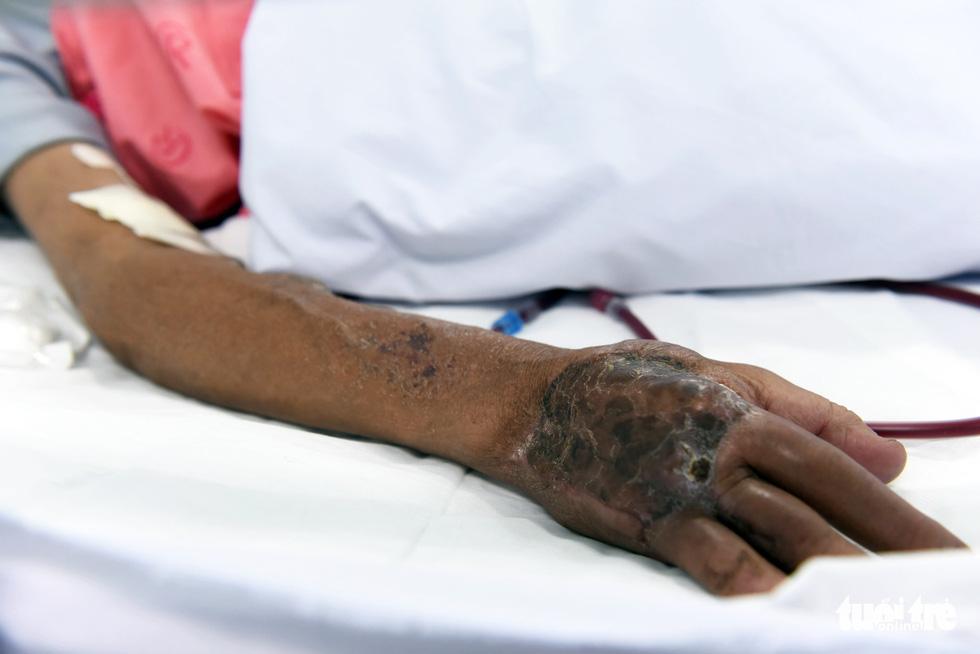 17 năm đón Tết trong bệnh viện của người đàn ông chạy thận - Ảnh 4.
