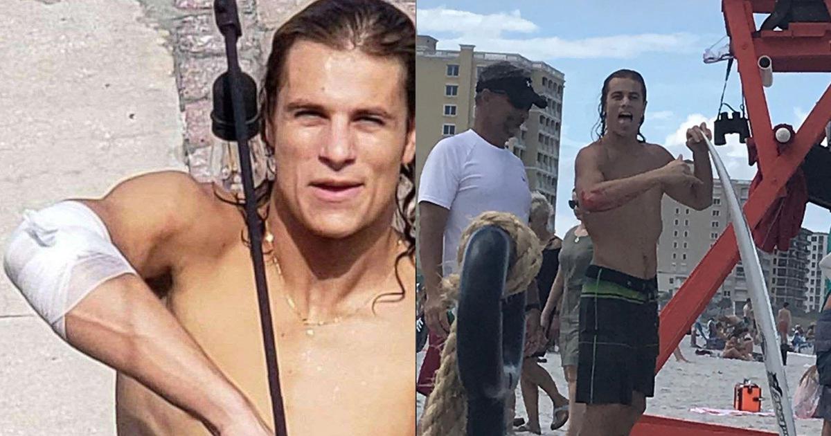 VĐV lướt sóng bị cá mập cắn: Không đi bệnh viện mà… chạy đến quán bar để khoe