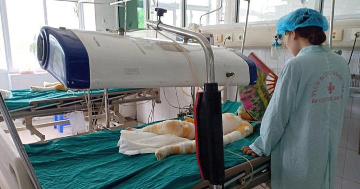 Tình hình sức khỏe 3 trẻ bị bỏng do cồn: Bác sĩ bảo 'chưa nói trước được'