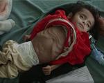 Trẻ em Yemen còn da bọc xương vì nạn đói và nội chiến kéo dài