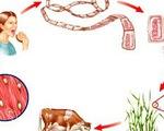 Phát hiện ổ bệnh 108 người nhiễm sán dây lợn tại Bình Phước