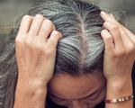 Bệnh tóc bạc sớm: Nguyên nhân và cách điều trị