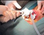 Lần đầu phẫu thuật nội soi cắt tuyến giáp không để lại sẹo