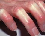 Bệnh xơ cứng bì: Những điểm cần lưu ý