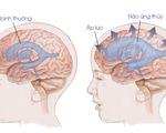 Não úng thủy ở trẻ em