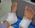 Bệnh nhân tiểu đường bỏng độ 3 vì đắp lá lên chân tay