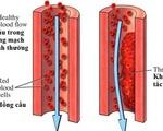 Bệnh viêm tắc động mạch