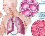 Hiểu đúng về viêm phổi