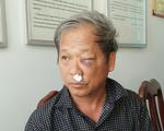 Phóng viên VTV 59 tuổi bị côn đồ đánh chấn thương
