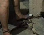 Người vợ bị chồng lấy xích sắt xích chân vào cột nhà