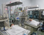 Thành công phẫu thuật tách rời hai bé gái dính nhau phần gan