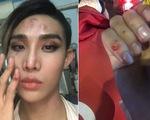 Người mẫu The Face tố bị tài xế Go Viet