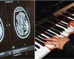 Kỳ lạ nghệ sĩ chơi piano trong khi được phẫu thuật não