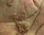 Cảnh báo bệnh giun sán chó liên tục tăng cao ở người