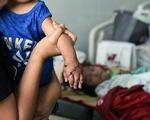 Nối thành công bàn tay bé trai 1 tuổi bị đứt lìa, nhiều y bác sĩ được khen thưởng