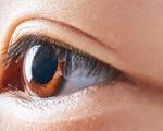 Kính áp tròng làm chậm tiến triển cận thị