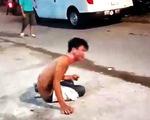 Em trai bị chị ruột tưới nguyên bình nước sôi lên người