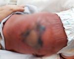 Mẹ nằm bếp than sau sinh, con bị hoại tử da vì bỏng nặng
