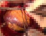 Cứu sống bệnh nhân vỡ tim sau khi bỏ qua quy trình thông thường