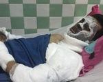 Việt kiều bị tạt axit rồi cắt gân chân: