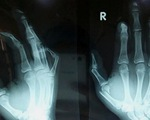 Học sinh lớp 8 giập nát ngón tay vì pháo nổ