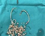 Nữ bệnh nhân quên tái khám rút stent nhựa trong thận và bàng quang