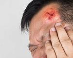 7 dấu hiệu cho thấy bạn cần đi cấp cứu sau một chấn thương đầu