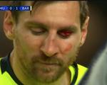 Messi đổ máu trong chiến thắng của Barca trước MU