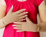 Xử lý phù tay sau điều trị ung thư vú