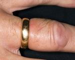 7 nguyên nhân khiến ngón tay sưng phù