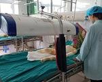 Tình hình sức khỏe 3 trẻ bị bỏng do cồn: Bác sĩ bảo
