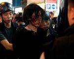 Trung Quốc nói Hong Kong đang trong