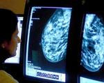 """Không dùng """"cuộc chiến chống ung thư"""" sẽ tốt hơn cho người bệnh?"""