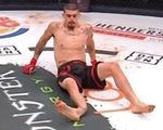 Đá trúng đối thủ, võ sĩ MMA Albert Gonzales bị gãy chân đáng sợ