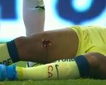 Video cựu cầu thủ Barca bị đối thủ đạp thủng đùi