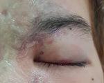 Thiếu nữ 15 tuổi mù mắt sau tiêm filler nâng mũi ở spa