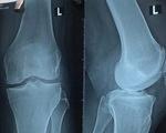 Bệnh nhân tử vong khi chữa gãy xương ở Bệnh viện STO Phương Đông