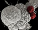 Tin vui: tìm ra chất làm thuốc trị ung thư mới khiến tế bào ung thư 'chết đói'
