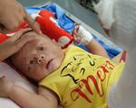 Bé trai 4 tháng tuổi gãy xương, xuất huyết não, bầm nhiều chỗ, người nhà nói