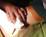 Bé trai 15 tuổi giập nát bàn tay trái do pháo tự chế