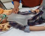 Bé trai 4 tuổi ngộ độc nguy kịch vì nhầm thuốc cai nghiện là sirô dâu