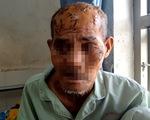 Khởi tố, bắt tạm giam cháu nội chém ông theo hành vi 'giết người'