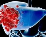 Sự thật về căn bệnh ung thư gan