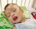 Uống nhầm thuốc tẩy bồn cầu, bé trai bị loét miệng, dạ dày
