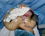 Cứu sống mẹ bầu bị chứng tăng đông máu hiếm gặp