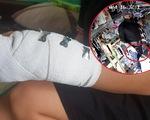 Cô nhân viên bị cướp đâm ở shop đồ trẻ em: