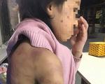 Vụ bé gái 12 tuổi bị mẹ đẻ bạo hành, người tình của mẹ cưỡng bức: Cục Trẻ em lên tiếng
