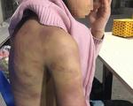 Bé gái 12 tuổi nghi bị mẹ đẻ bạo hành, người tình của mẹ cưỡng bức nhiều lần