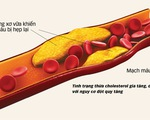 Kiểm soát thừa cholesterol: giảm 27% nguy cơ đột quỵ